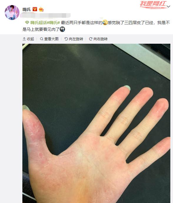 亿九九卡盟:嗨氏终于走出低谷,月收入突破20万,看到他的手粉丝心疼了!